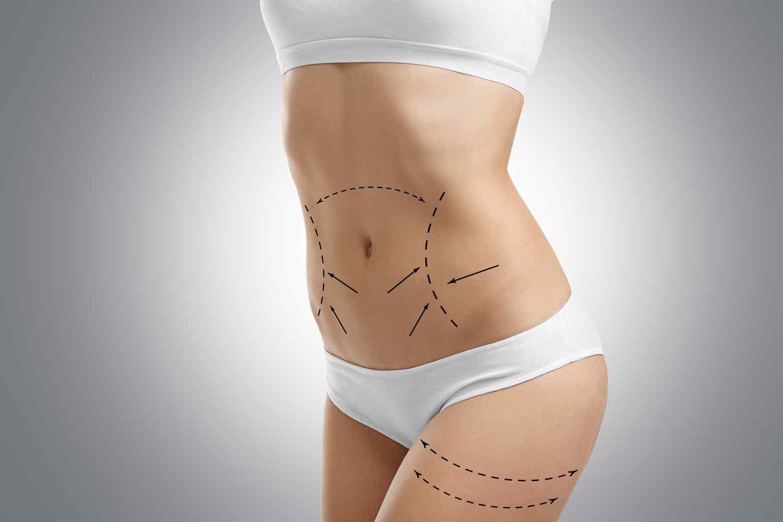 https://hausarztpraxis-hainholz.de/wp-content/uploads/2017/08/cosmetic-surgery-blog-06.jpg
